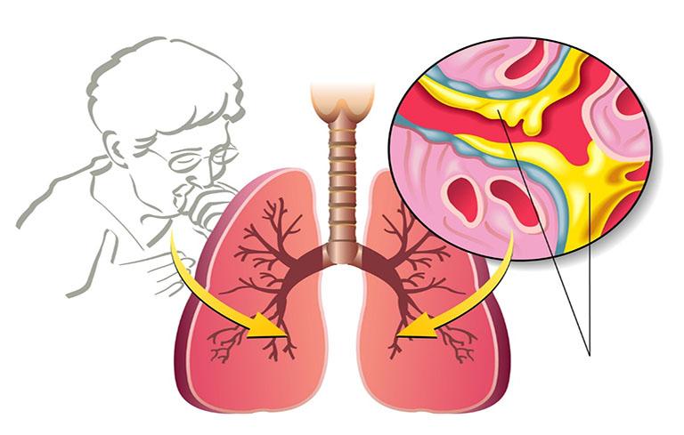 Những trường hợp nặng, mủ gây ảnh hưởng nghiêm trọng có thể cần sự can thiệp của các phương pháp chọc, hút mủ
