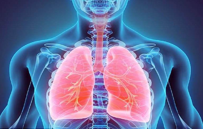 Bệnh nhân áp xe phổi có thể phát hiện bệnh thông qua triệu chứng và khẳng định bằng hình ảnh siêu âm, X-quang