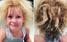 Bạc tóc ở trẻ em do đâu
