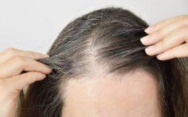 Tóc bạc sớm là thiếu chất gì?