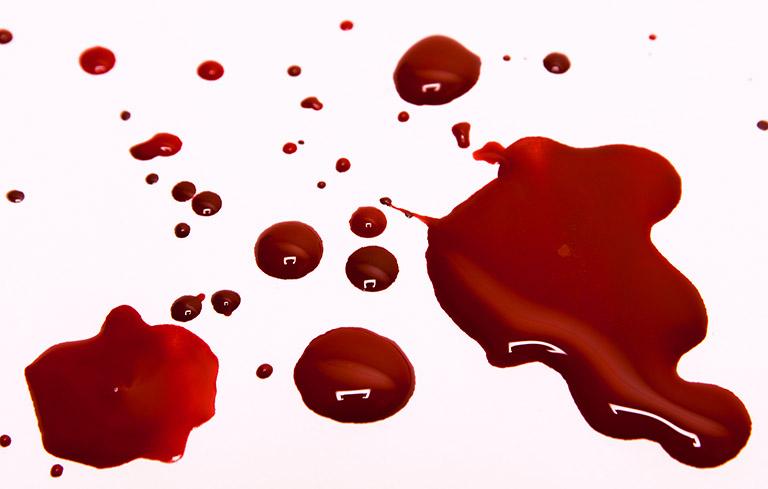 Tình trạng băng huyết có thể xảy ra và nếu không được xử lý kịp thời sẽ gây nguy hiểm cho chị em