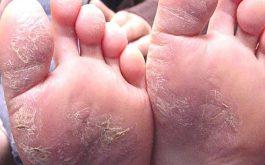 Bệnh á sừng ở chân