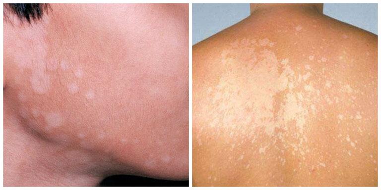 Hình ảnh bệnh lang ben ở mặt, ở lưng với các đốm da mất sắc tố