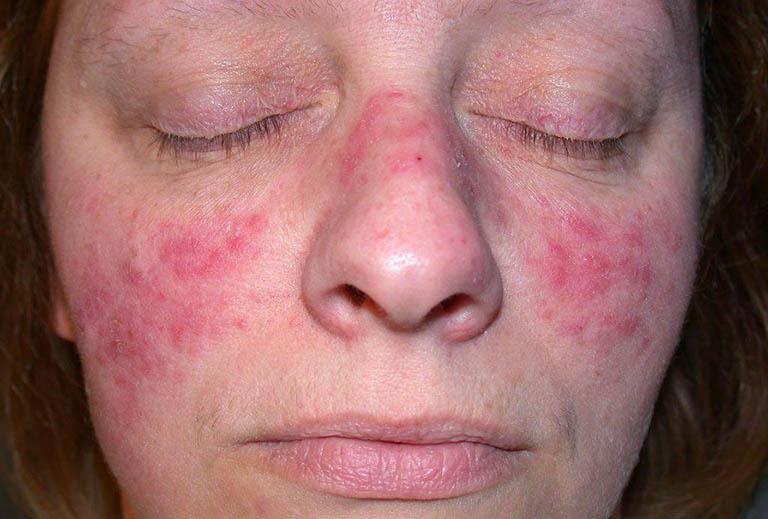 Nguyên nhân gây bệnh Lupus ban đỏ