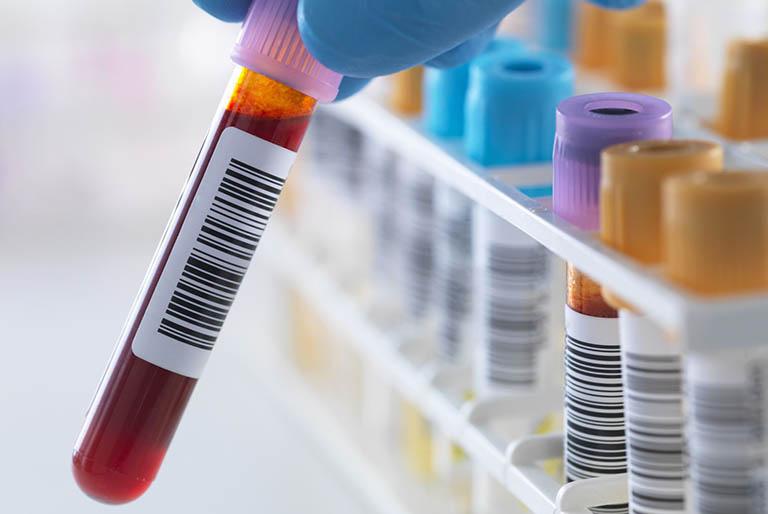 Phương pháp chẩn đoán bệnh Lupus ban đỏ