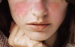 Bệnh Lupus ban đỏ có lây hay di truyền không?