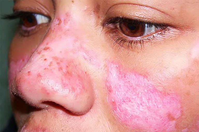 Bệnh Lupus ban đỏ là gì? Triệu chứng, Điều trị và Chăm sóc