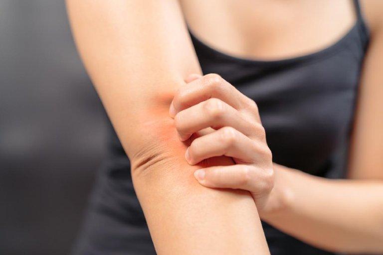 Bệnh ngứa ngoài da