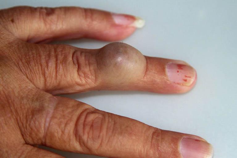 Bệnh U nang lông là gì? Cách nhận biết và điều trị