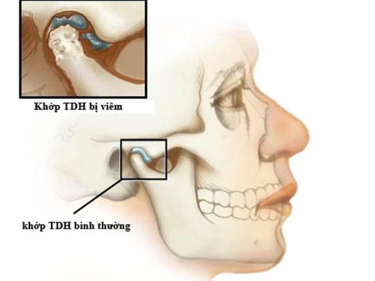 Viêm khớp thái dương hàm là bệnh lý khá phổ biến ở phụ nữ sau giai đoạn tiền mãn kinh.