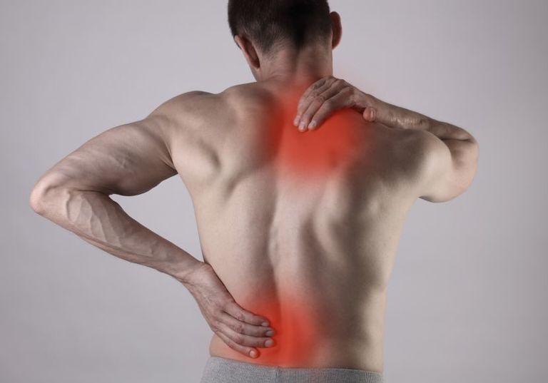 nguyên nhân của bệnh vôi hóa đốt sống lưng