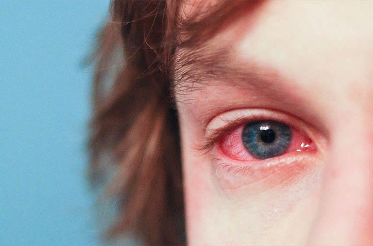 Biến chứng ở mắt