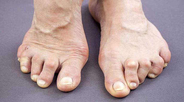 hiện tượng tê chân