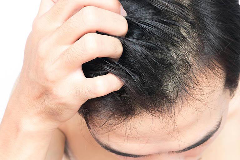 bia trị nấm da đầu