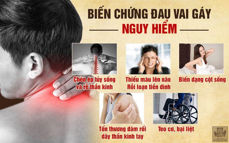 Những biến chứng nguy hiểm của đau vai gáy