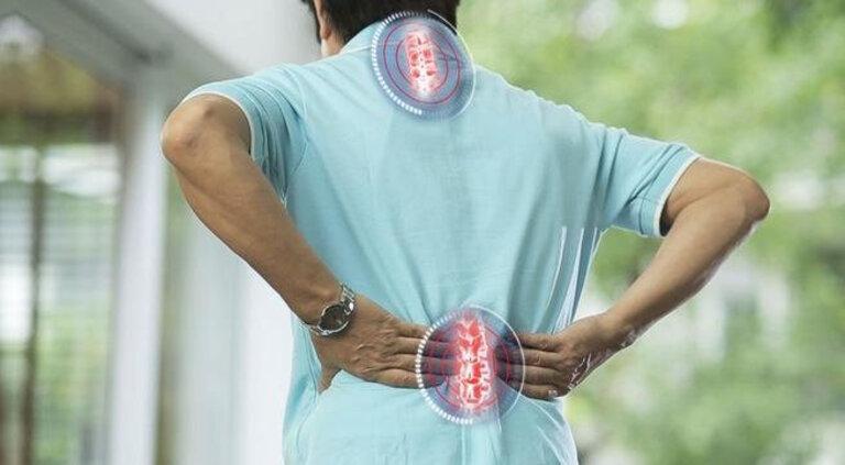 Khi bị vôi hóa cột sống, tình trạng đau nhức có thể bắt đầu ở các đốt sống cổ hoặc thắt lưng. Sau đó nó lan ra tứ chi.
