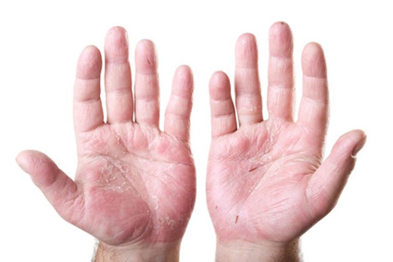 Dùng cây ngải dại chữa á sừng chỉ hỗ trợ cải thiện triệu chứng, nó không chữa được tận gốc bệnh.