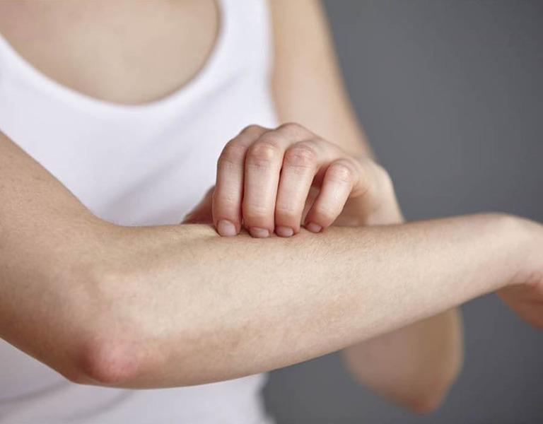 Cách chữa viêm da dị ứng từ các cây thuốc Nam