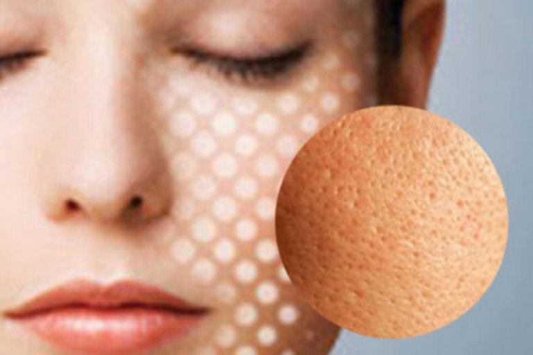Điều trị lỗ chân lông to trên da mặt tại nhà không khó. Điều quan trọng là bạn cần thực hiện đúng cách và kiên trì.