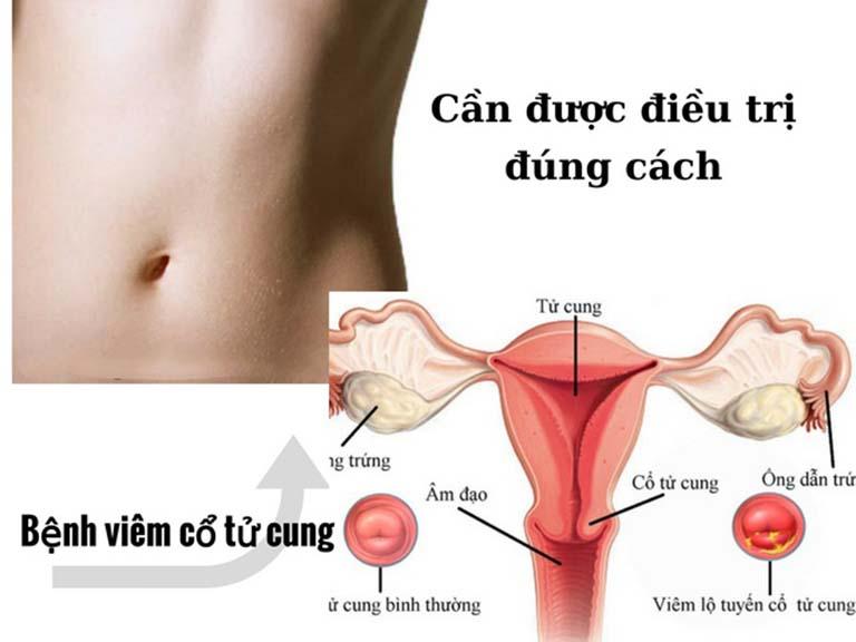 Viêm lộ tuyến cổ tử cung cần được điều trị đúng cách để đạt hiệu quả cao và tránh biến chứng