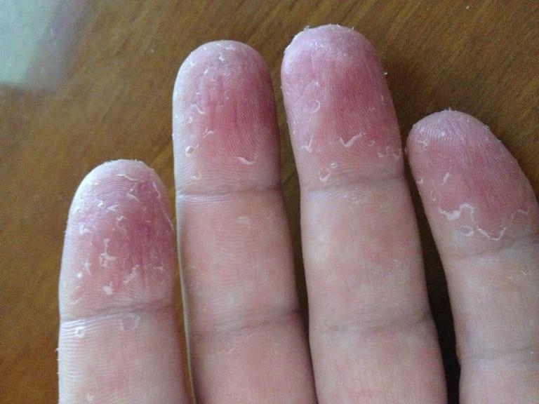 Dầu dừa làm chậm lại quá trình phát triển bệnh á sừng và hạn chế tình trạng tổn thương da.
