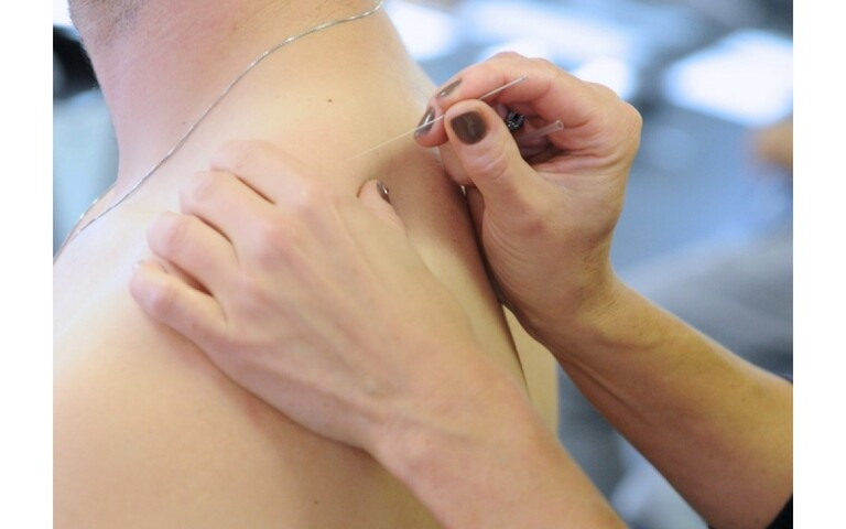 Châm cứu chữa đau lưng huyệt nào