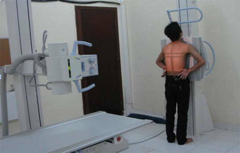 Chụp X-quang cho thấy hình ảnh chính xác nhất của phổi