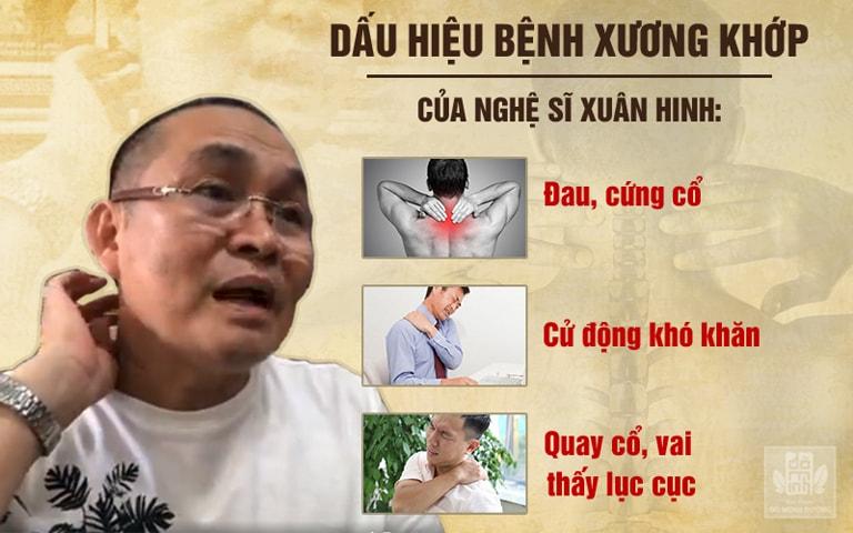 Nghệ sĩ Xuân Hinh thường xuyên bị quấy rầy bởi những cơn đau co cứng vùng cổ