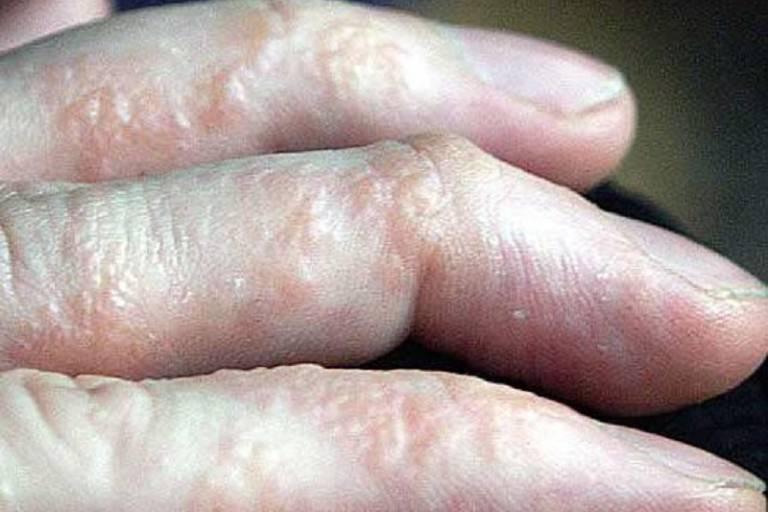 Dùng rau răm chữa tổ đỉa giúp đẩy lùi các triệu chứng của bệnh trên da
