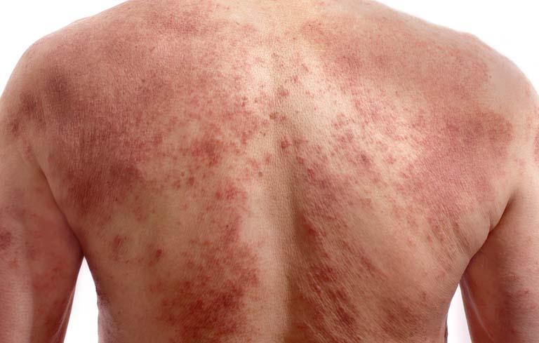 Hình ảnh biến chứng của bệnh khi chữa trị sai cách