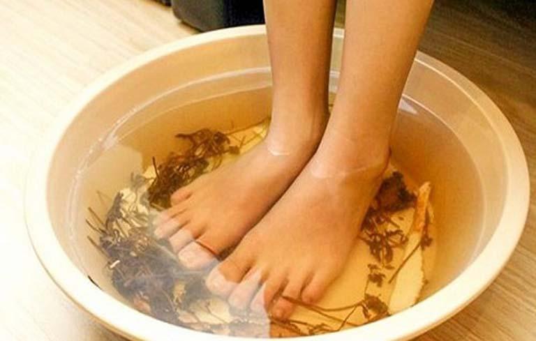 Chữa viêm da cơ địa bằng thuốc Nam theo cách ngâm rửa