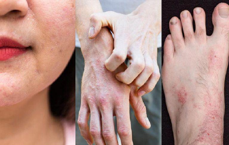 Hình ảnh bệnh viêm da cơ địa