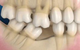 Cấu tạo của hàm răng có thể bị sai lệch cấu trúc khi bị viêm khớp thái dương hàm. Do đó, người bệnh có thể được nắn chỉnh để cải thiện đau nhức.