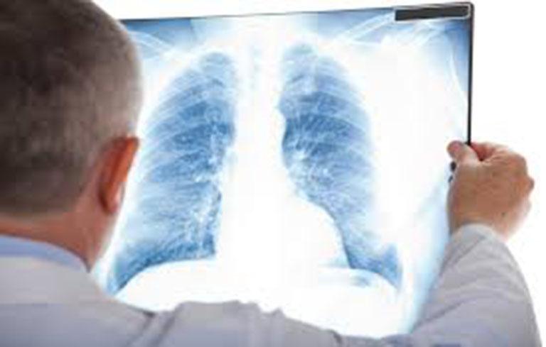 Chụp X-quang là phương pháp chẩn đoán chính xác nhất tình trạng áp xe phổi