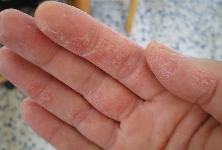 Da bị khô và bong tróc - Nguyên nhân và cách điều trị