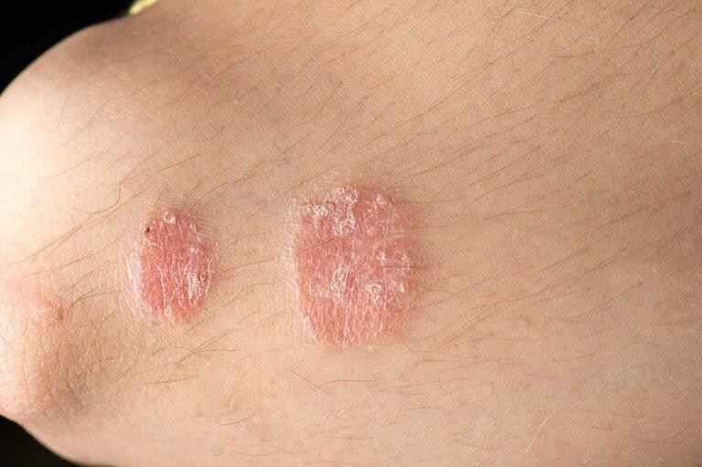 Dùng lá lốt chữa vảy nến góp phần giảm nhẹ các triệu chứng và hạn chế lây lan bệnh sang những vùng da khác.