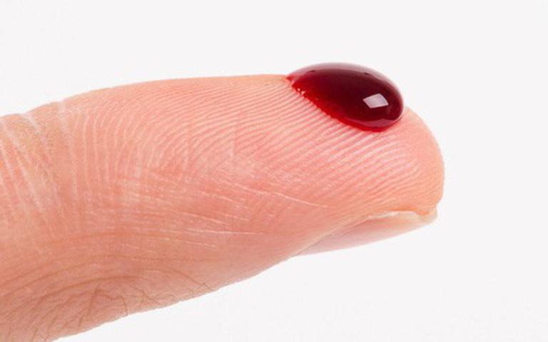Hắc lào đã đi vào máu là dấu hiệu nghiêm trọng của bệnh.