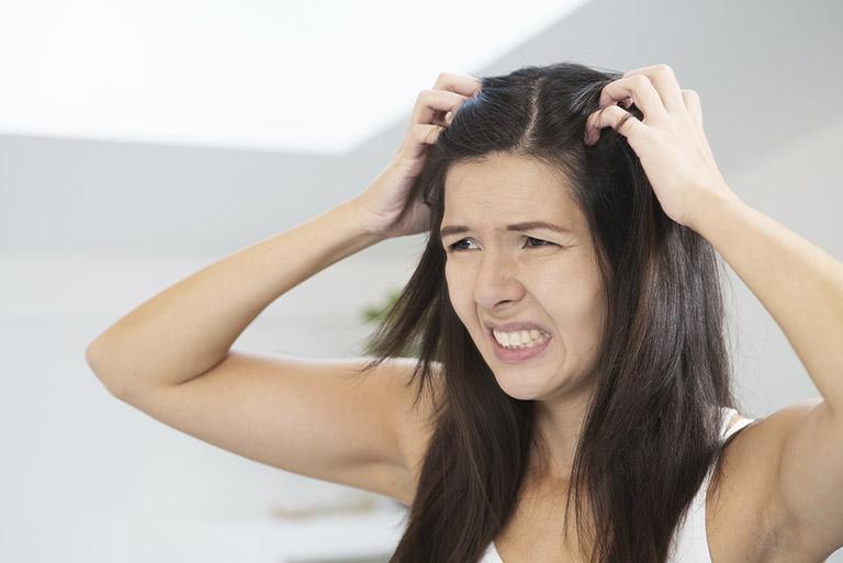 hành tây trị nấm da đầu