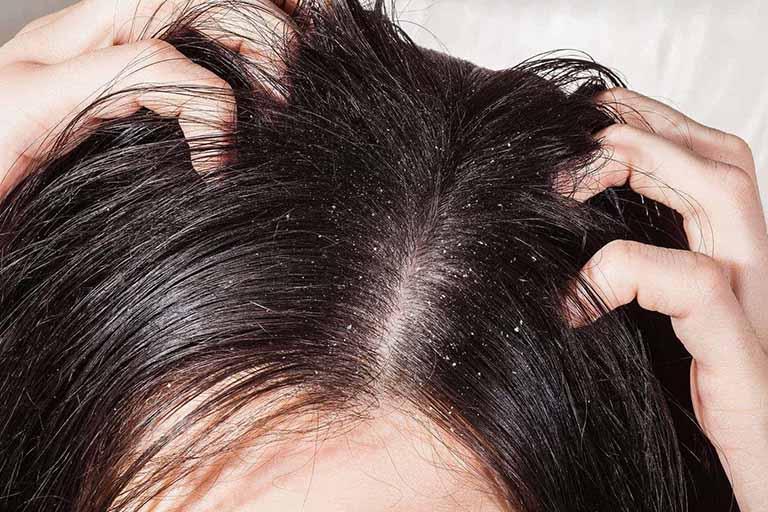 Hạn chê dùng tay cào gãi lên da đầu làm gia tăng nguy cơ bị nhiễm trùng