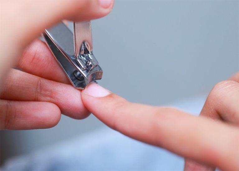 Nên cắt ngắn móng tay để tránh tình trạng gây trầy xước trên da