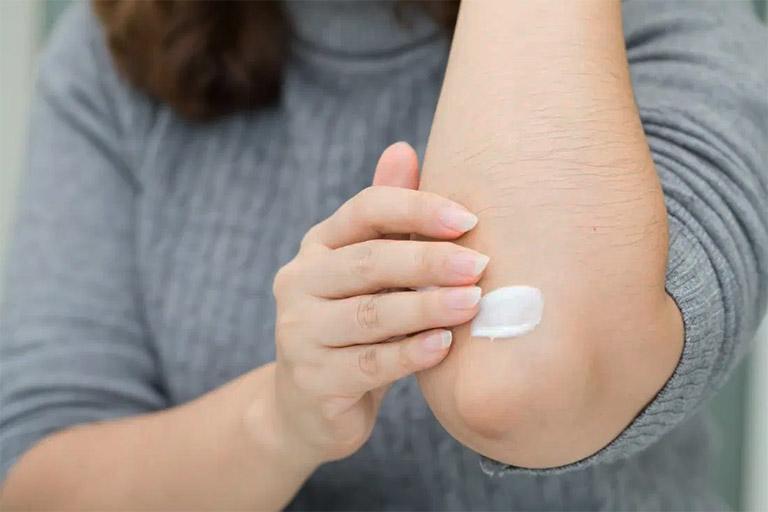 Sử dụng thuốc tây y trị viêm da cơ địa theo chỉ định của bác sĩ da liễu hoặc dược sĩ chuyên môn