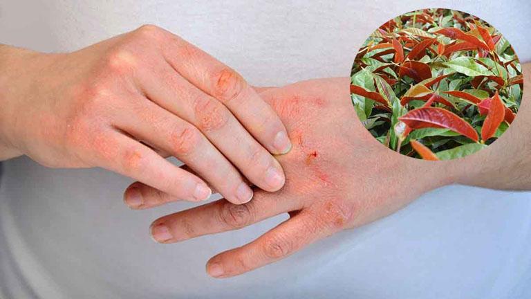 Tìm hiểu công dụng của lá đơn đỏ đối với bệnh viêm da cơ địa và một số bệnh lý về da khác