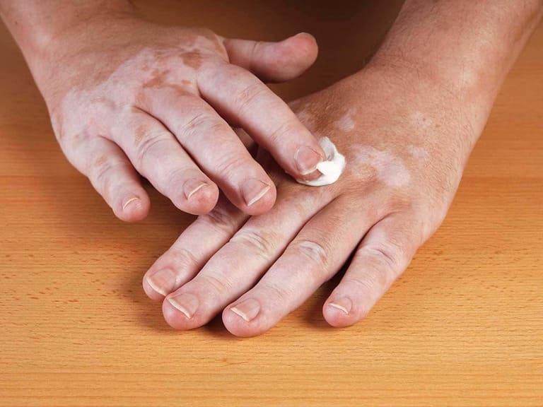 cách phòng ngừa lang ben