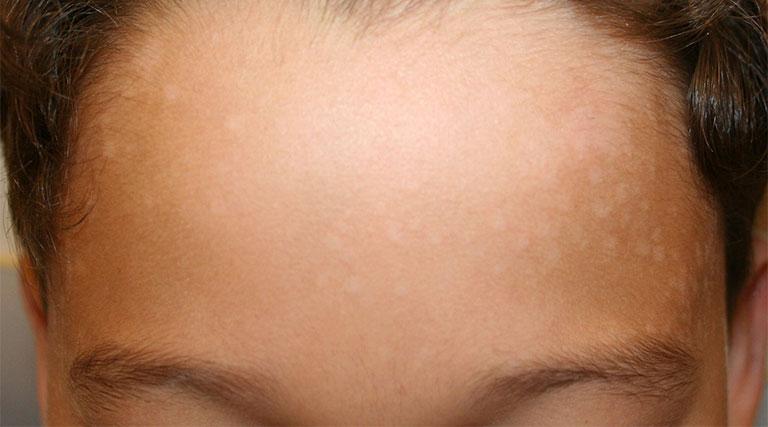cách chữa bệnh lang beng trên mặt