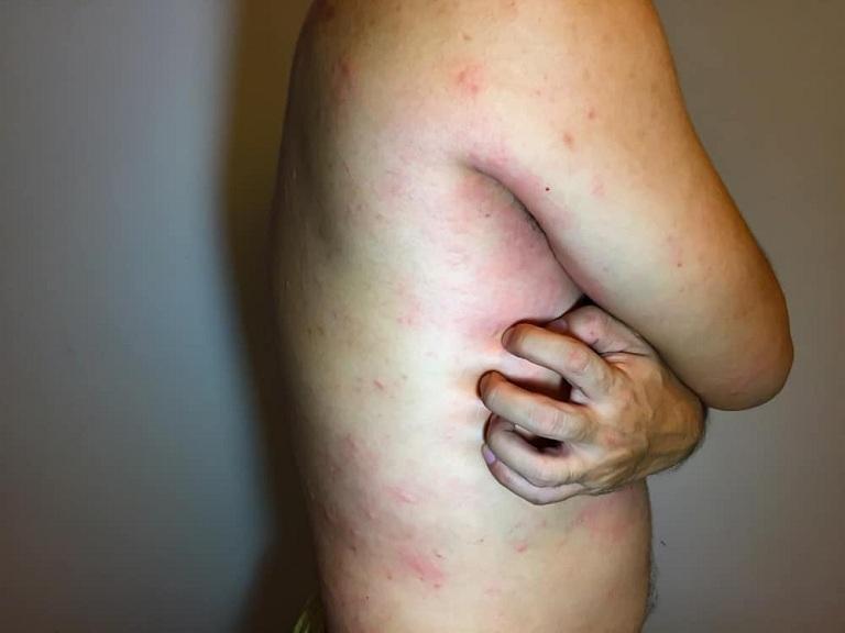 hình ảnh lupus ban đỏ dạng đĩa