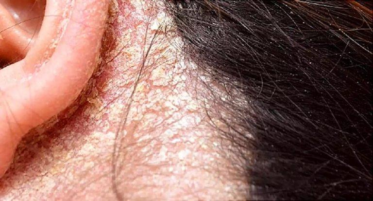 Triệu chứng nấm ở da đầu