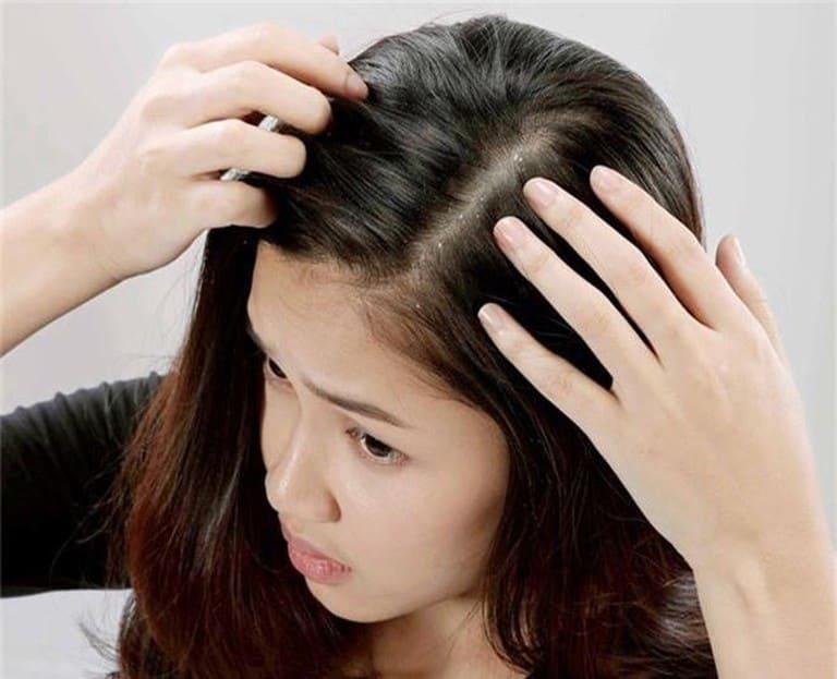 Người bị nấm da đầu có nên nhuộm tóc?