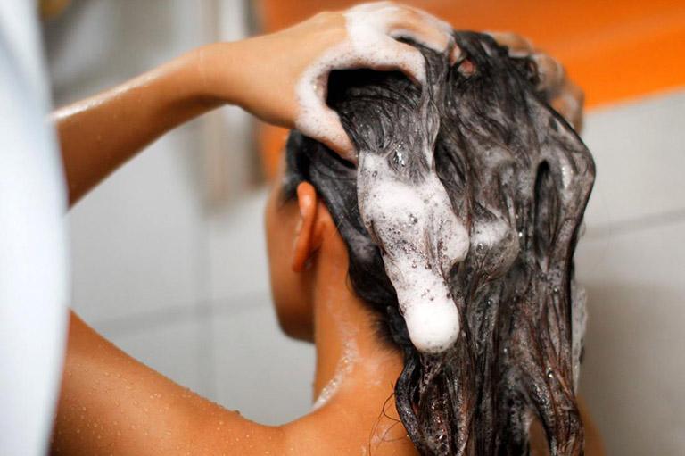 cách trị nấm da đầu gây rụng tóc