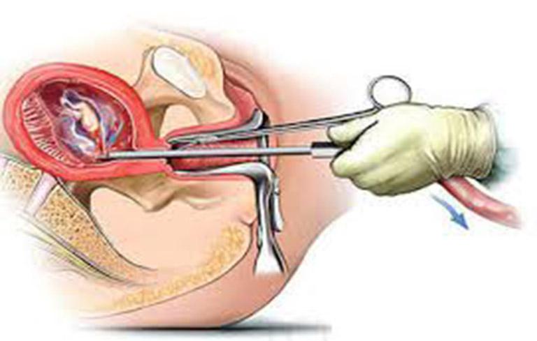 Việc nạo hút thai không được tiến hành cẩn thận, thực hiện nhiều lần có thể gây tổn thương, dị tật ở tử cung, gây rong kinh mỗi chu kỳ