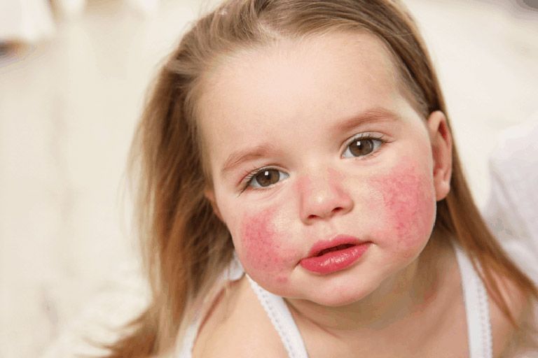 ngứa da mặt là bệnh gì